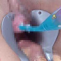 【無修正】オマンコをクスコでガバッと開きながら尿道に歯ブラシを突っ込まれて喘ぎまくる超ド変態熟女w